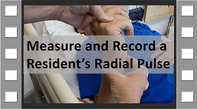 Read more about the article Measure and Record Radial Pulse CNA Skill